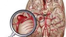 Beyin Kanaması ve Anevrizma